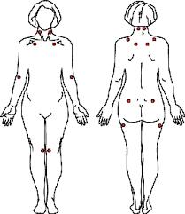 tender fibromyalgia points