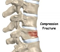 compression fracture lumbar spine